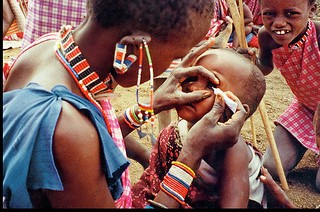 Little black boy getting eyedrops from his mother